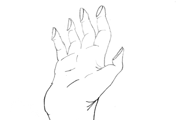 Artist's Depiction - Hand, Immediately After